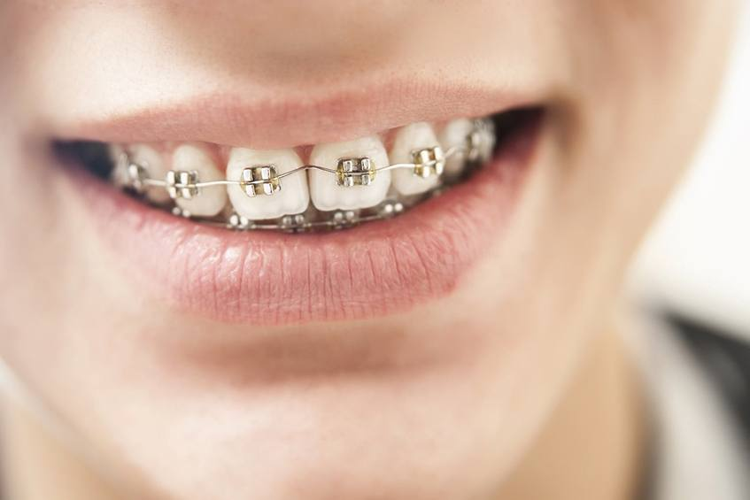 Close-up of young boy's teeth with braces