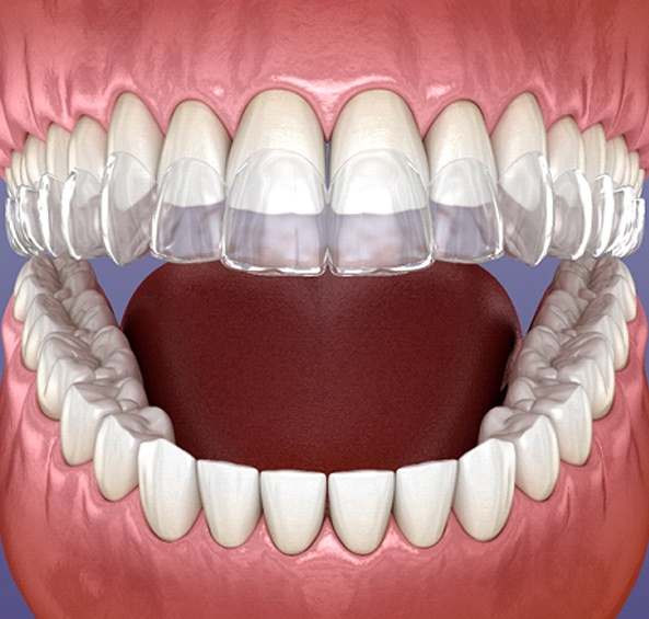 A clear aligner going on over the top row of teeth