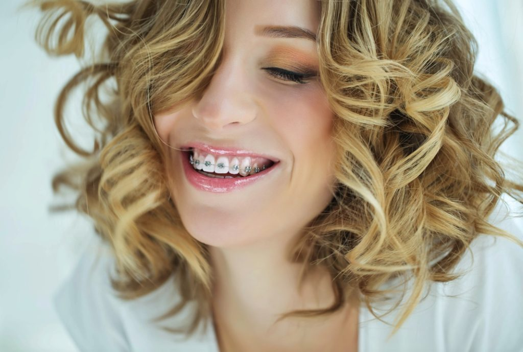 Woman with braces in Frisco